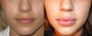 ботокс губ