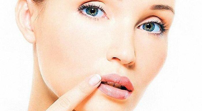 Простуда на губах: как избавиться?