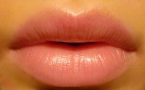 увеличение губ гиалуроновой кислотой отзывы