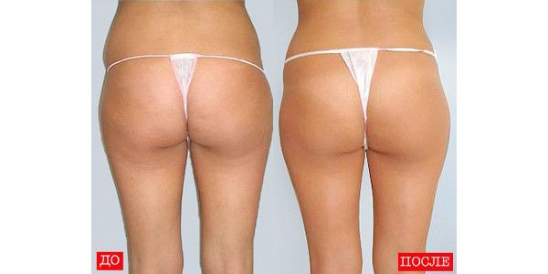 lpg массаж отзывы фото до и после