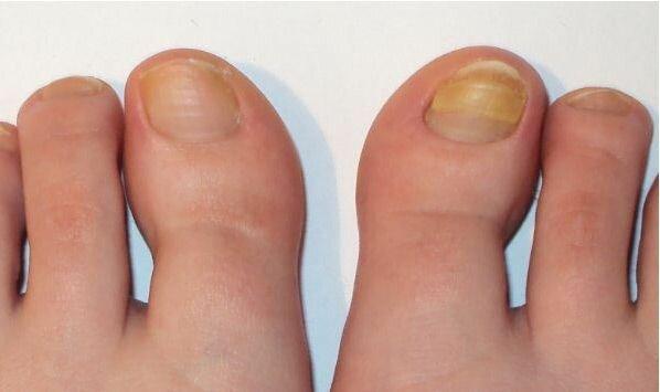 Как вылечить грибок ногтей на ногах без таблеток быстро