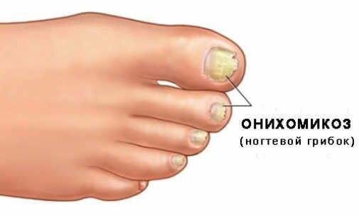 Косметическое масло чистотела от грибка ногтей