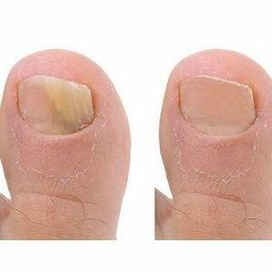 Название грибков ногтей