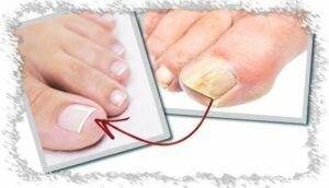 Офломил-лак от грибка ногтей: отзывы цена