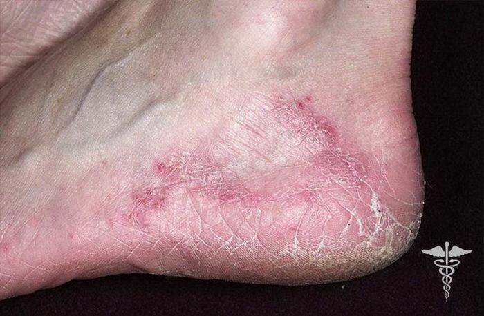 Чеснок от грибка ногтей на руках и ногах
