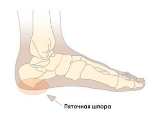 pyatochnaya-shpora-simptomy-lechenie