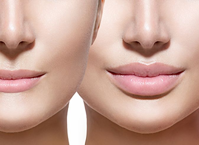 Как на сделать губы больше 20