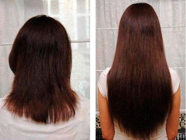 Как действует никотиновая кислота на волосы