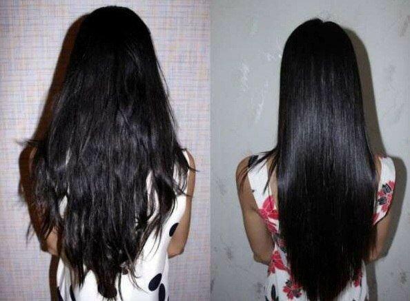 Лечение конским волосом