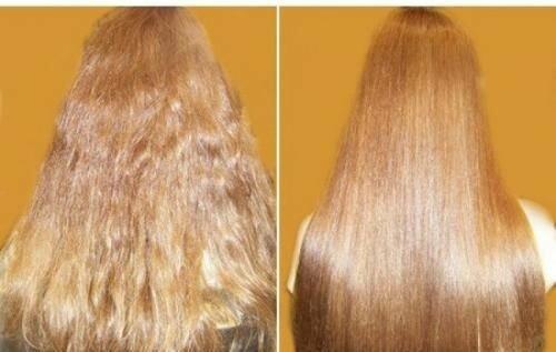 Падение волос причины и лечение у женщин
