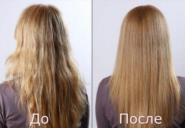 Какие витамины пить при выпадении волос у женщин цена