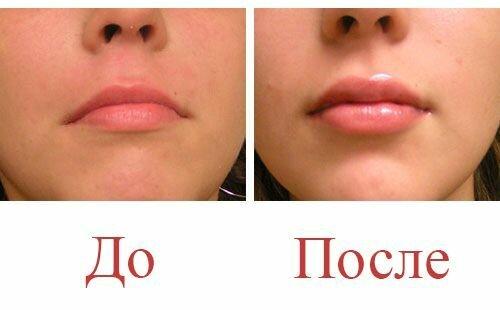 Увеличение губ гиалуроновой кислотой: до и после, фото