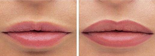Татуаж губ: отзывы