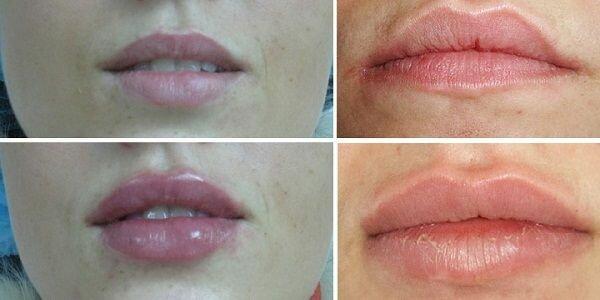 увеличние губ гиалуроновой кислотой