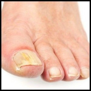Лоцерил от грибка ногтей