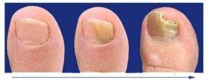 Лоцерил от грибка ногтей: отзывы, цена